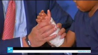 بالصور: نجح جراحون بزرع يدين لطفل في الثامنة من عمره !