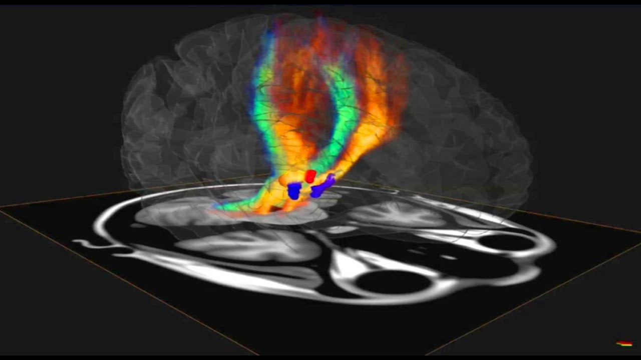 Brain enhancer side effects photo 1