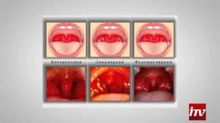 видео Причины кашля и его лечение - Доктор Комаровский