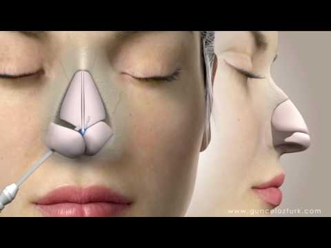 Rhinoplasty (Nose Job) Video Animation - Guncel Ozturk, MD