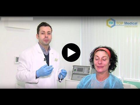 Tratamiento de Hidroxiapatita cálcica, Murcia, Rejuvenecimiento facial