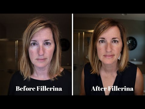 Fillerina Plumping System Review - BEFORE And AFTER