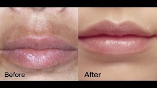 Instant Way to Remove Dark Black Patches, Spots, Hyper Pigmentation Around Mouth, Nose & Chin