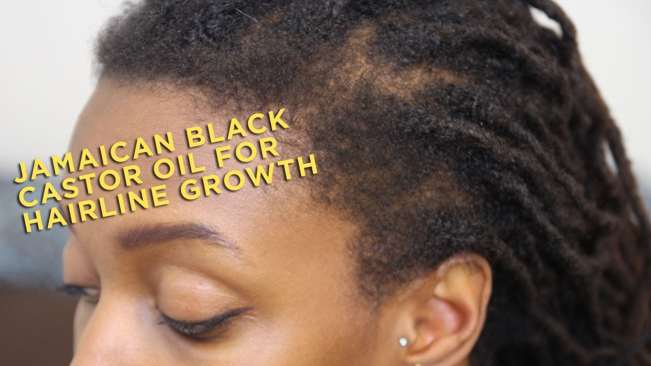 Jamaican Black Castor Oil For Hairline