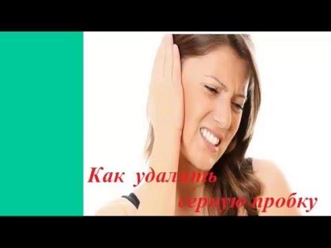 Как удалить серную пробку из уха