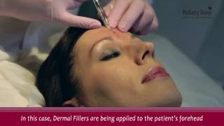 Dermal Fillers Injections Consultation And Treatment Process Step By Step (demo) thumbnail