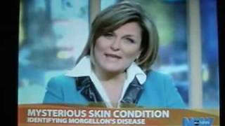CHEMTRAiLS/ MORGELLONS KiLLS!!!!!!! MUST SEE!!!!!!! 100% TV MEDiA PROOF