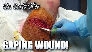 Graphic Open Wound Surgery (NSFE)