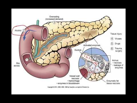 Pancreatitis   Animated Figure