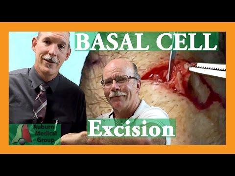 Skin Cancer CURED | Auburn Medical Group