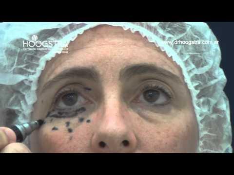 Blefaroplastía transconjuntival, cirugía de párpados y láser de Co2 (14013)