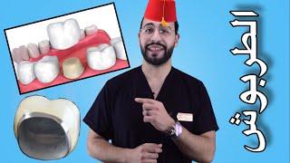 تركيبات الاسنان ١ | هل فعلا تحتاج لتغليف او تلبيس ضرسك ام لا ؟ انواع تركيبات الاسنان واسعارها ؟