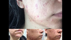 hqdefault - How To Cure Acne - Proactiv - Murad