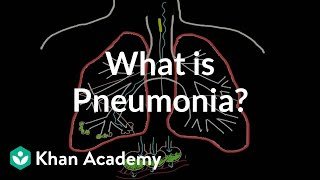 What is pneumonia? | Respiratory system diseases | NCLEX-RN | Khan Academy