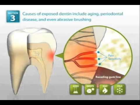 Demineralized tooth enamel dynamics of treatment youtube demineralized tooth enamel dynamics of treatment ccuart Gallery