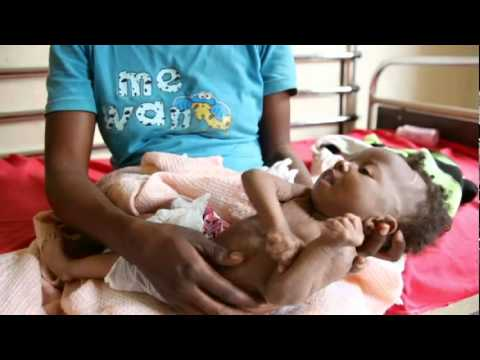 Action Against Hunger : Helping Hospitals Treat Malnutrition in DR Congo