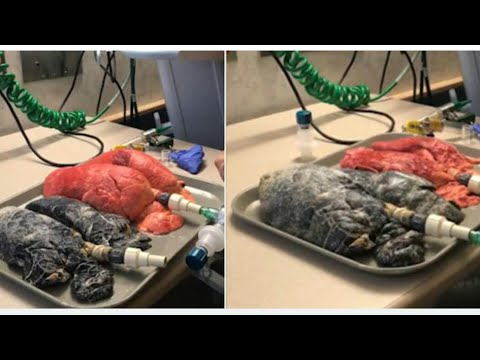 Shocking Difference Between Healthy Lungs And Those Of A Smoker.