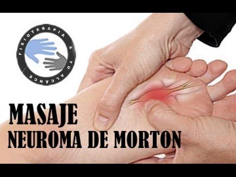 Neuroma de Morton tratamiento y fisioterapia