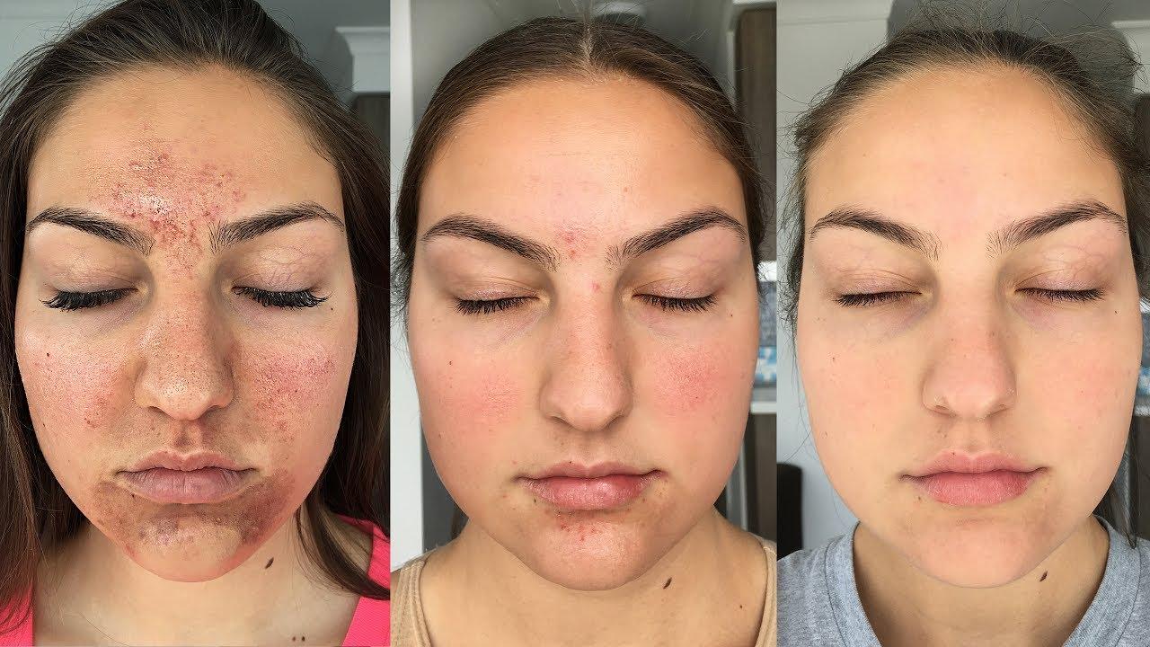Accutane Experience Got Clear Skin Before