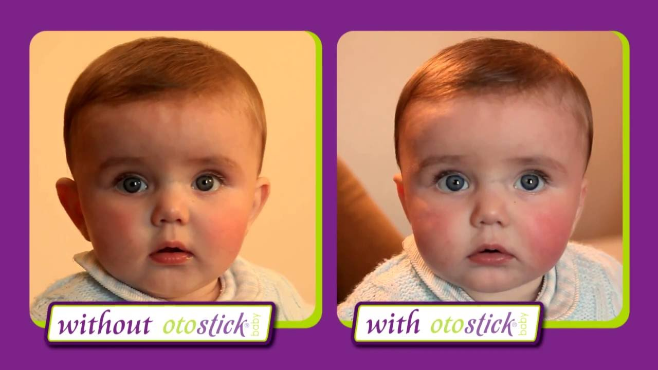 Otostick® Baby aesthetic correctors for protruding ears ...
