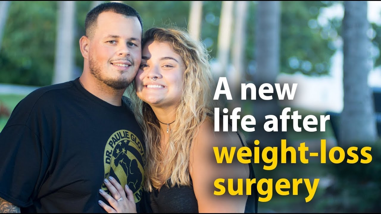 Alex And Josh Life After Weight Loss Surgery Youtube