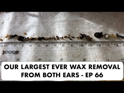OUR LARGEST EVER WAX REMOVAL FROM BOTH EARS - EP 66