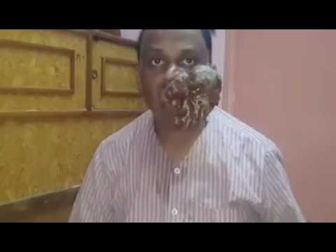 Get rid of tobacco. Bad habit instantly ....Tobacco Eater suffering Full Film short story