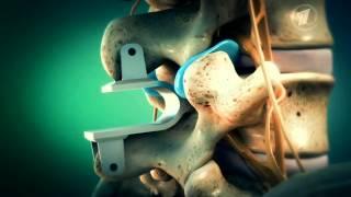 Немецкий проект. Лечение боли в пояснице, отдающей в ногу(, 2014-04-27T11:35:25.000Z)