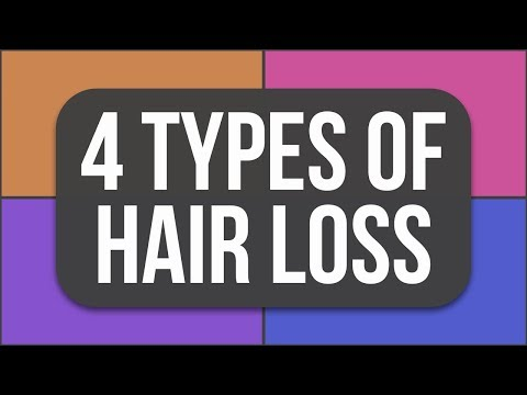 What Type Of Hair Loss Are YOU Experiencing???