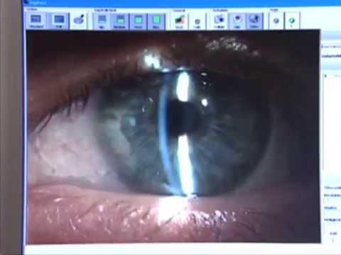 Keratoconus Puls Swiss Television 2007
