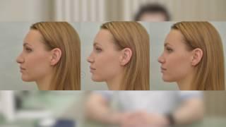 Ринопластика  Кончик носа или полная ринопластика