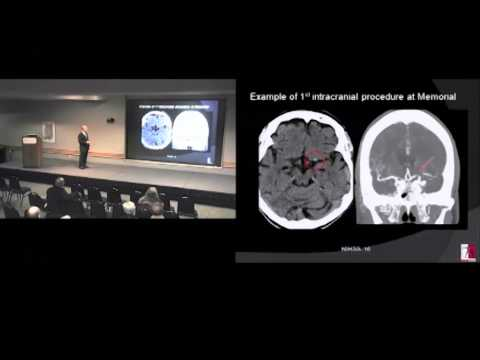 Advances In Stroke Treatment and Recovery 11-5-2012