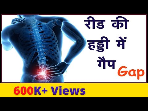 रीढ़ की हड्डी में गैप | Gap in the spinal cord ! Disk | Spine pressure relief |