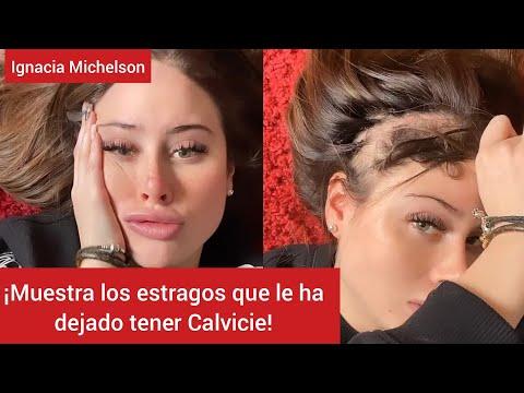 ¡Ignacia Michelson muestra los estragos que le ha dejado tener Calvicie!