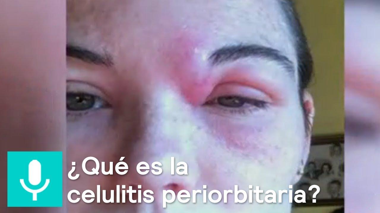 Que es celulitis periorbitaria
