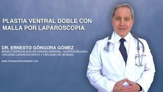 Plastia Ventral Doble con Malla por Laparoscopia | Dr. Ernesto Góngora