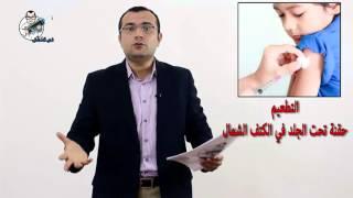 بالفيديو.. 'في العضل' يرد على شائعة تطعيمات الحصبة الفاسدة