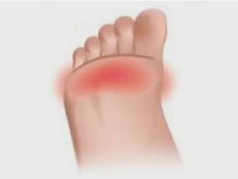 Pain In Bottom Of Foot When Walking