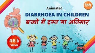 Diarrhoea in children | Hindi | Animation | Dr.Maulik Shah
