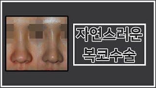 자연스러운 복코수술 feat.전후사진(before an…