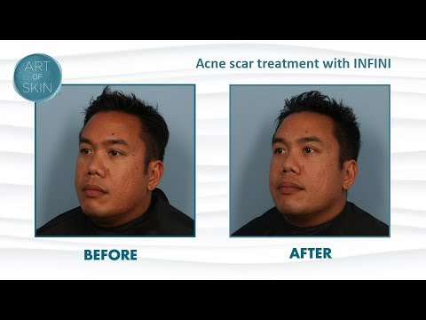 acne-scar-treatment-with-rf-microneedling-infini