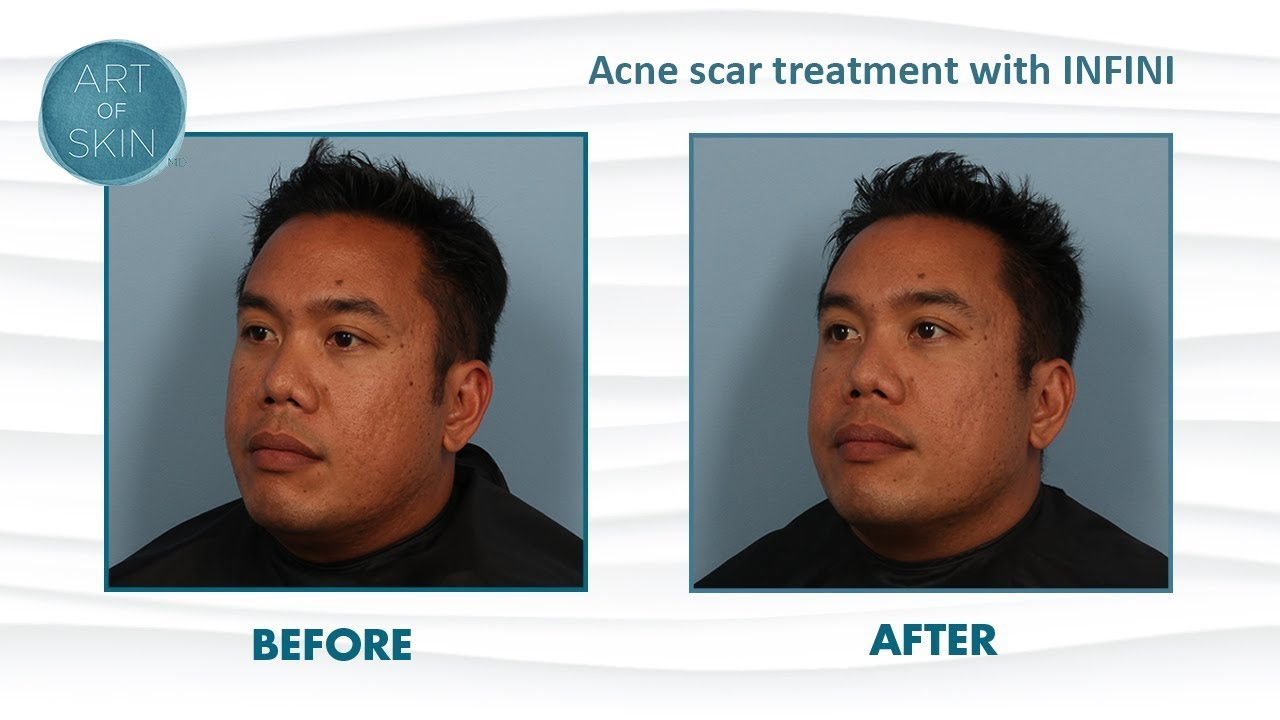 Acne scar treatment with RF microneedling INFINI