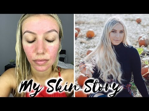 HOW I CURED MY ACNE ROSACEA, BEFORE & AFTER, MY SKIN STORY, REDNESS, ACNE TREATMENT |Scarlett London