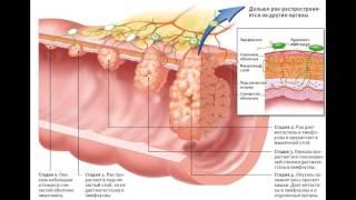 видео Лечение аденокарциномы толстой кишки народными средствами