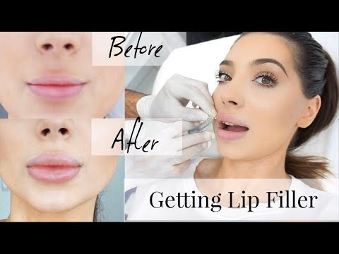 Vlog: Getting Lip Fillers 💉👄, Shopping & I Destroyed My Valentino Rockstuds  😱