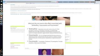 2013-04-20 13.22 Registrars Systemic antifungals