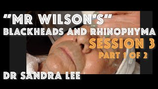 "Session 3, Part 1 of 2: ""Mr Wilson"" A facial and blackhead extractions!"