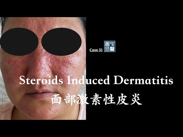 steroid induced dermatitis, steroid roseacea,  perioral dermatitis 面部激素性皮炎, 激素红斑痤疮