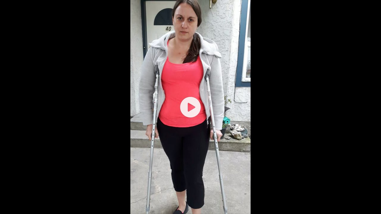 Going Up And Down Stairs On Crutches Non Weight Bearing Youtube