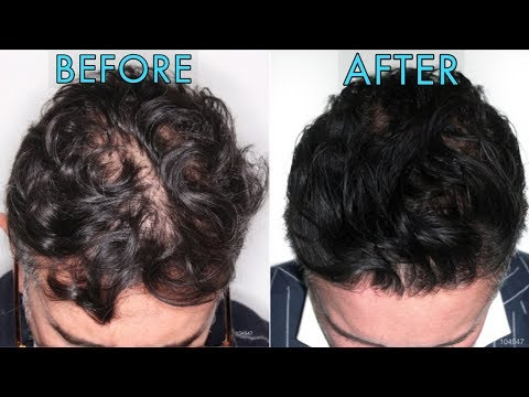 is-regenera-activa-the-next-hair-loss-cure?